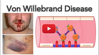 von Willebrand disease - Platelet adhesion and aggregation - MADE EASY