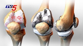 Latest Treatments For Knee Joint Replacement | Srikara hospital | Health File | TV5 News