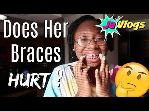 DOES HER BRACES HURT? | DIY BACKDROP