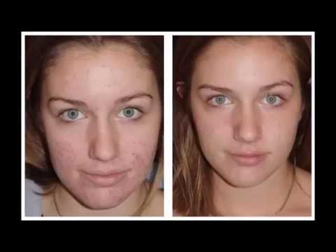 Apple Cider Vinegar Before And After Acne Apple Cider Vinegar Acne