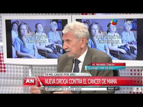 Nueva droga contra el cáncer de mama: Recomendaciones del doctor Reinaldo Chacón