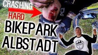 KNIE ZERSTÖRT ReverseRoadTrip VLOG 1 Bikepark Albstadt