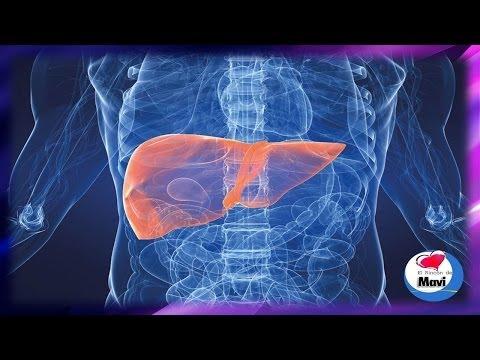 ¿Que es la hepatitis Sintomas Remedios caseros y naturales para la hepatitis