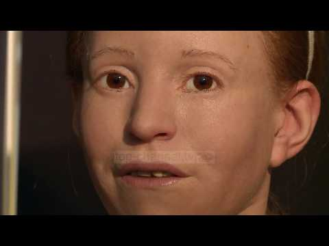 Në Tiranë fytyra e rindërtuar e Myrtis, vajzës 2500 vjeçare