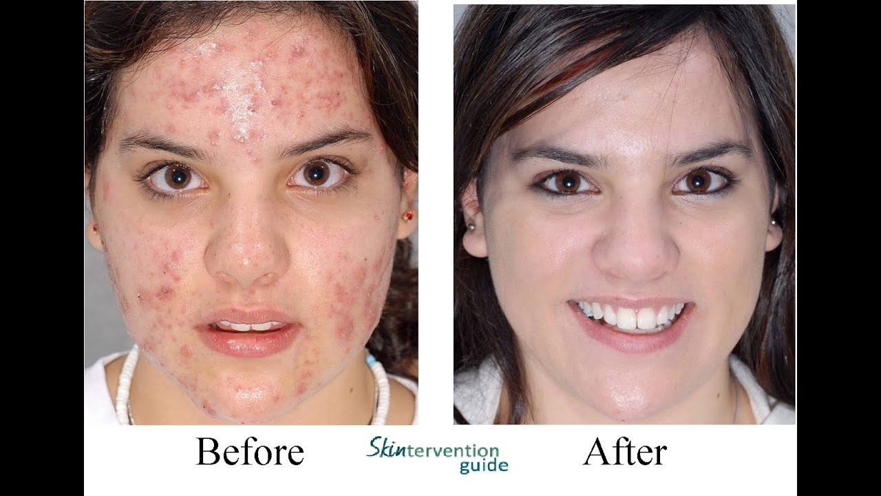 Remove Acne Overnight Naturally