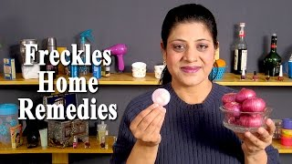 Freckles Treatment - How To Get Rid of Freckles Naturally by Sonia Goyal @ ekunji.com