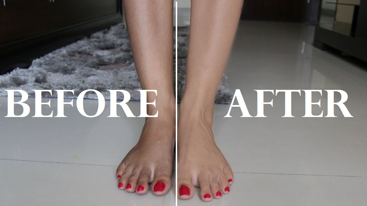 hair removal cream before after legs