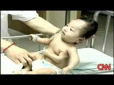 Three Armed Chinese Baby - cheapcheapcheap.org