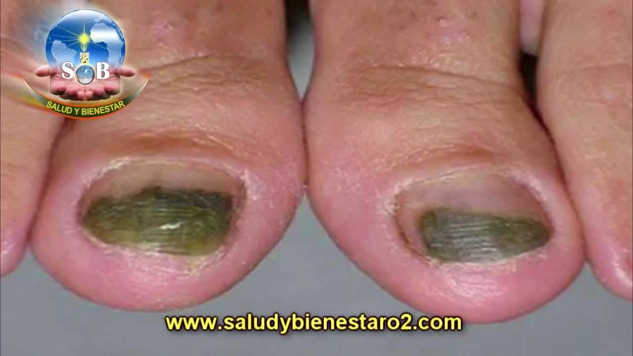 El barniz del hongo sobre las uñas en los pies