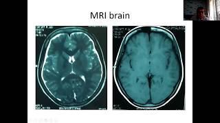 Fine Sunday Morning Office Neurology 28 June 2020
