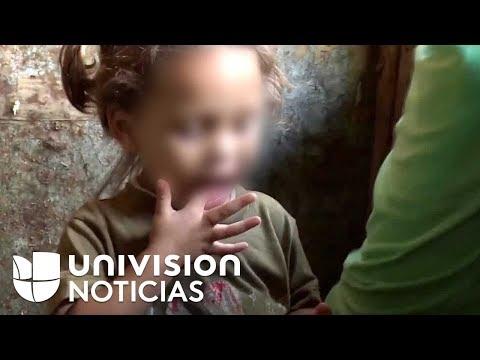 Denuncian hambre y desnutrición en niños de Venezuela mientras Maduro niega la hambruna