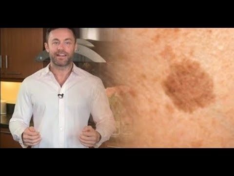 0 - Як позбутися від пігментних плям на обличчі народними засобами