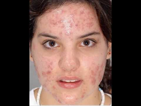 My Acne Treatment Story - I am Now Acne Free