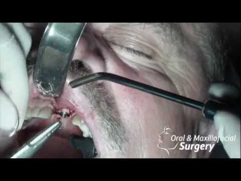 Dental implant surgery case with bone grafting