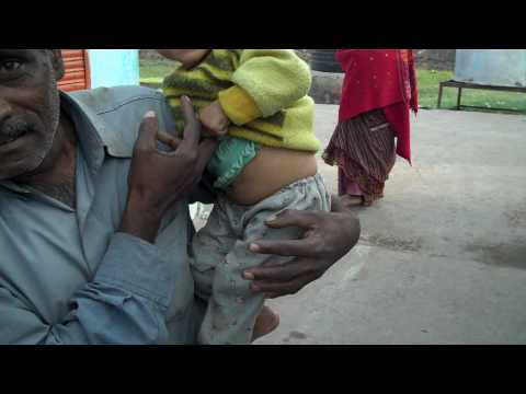 Bhopal Toxic Water Skin Damage.MP4