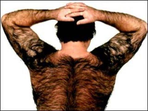 Если повышена волосатость на теле мужчины