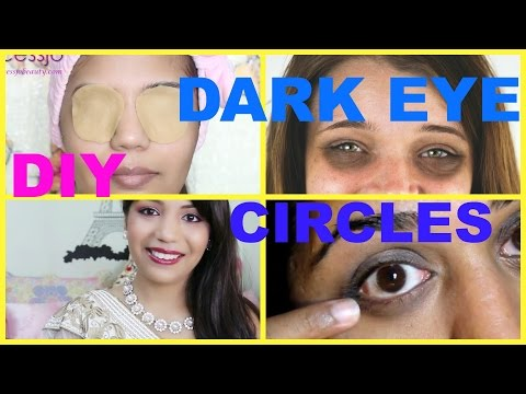 How to Get Rid of Dark Circles IMMEDIATELY FAST Naturally at Home ,SuperPrincessjo
