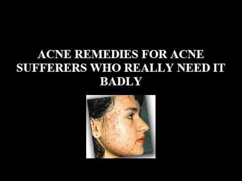 ACNE REMEDIES FOR ACNE SUFFERERS WHO REALLY NEED IT BADLY