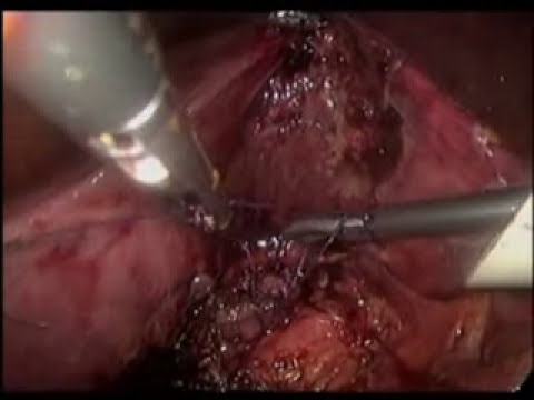 Have you ever seen a complicated case of laparoscopic cholecystectomy like this?