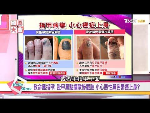 台灣-國民大會-20181012 致命黑指甲! 指甲黑點擴散慘截肢 小心惡性黑色素癌上身?