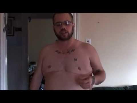 7 Wks Post Op Top Surgery