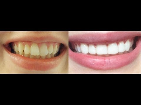 How to get INSTANT STRAIGHT teeth without braces. Veneers & whitening experience BEFORE and AFTER