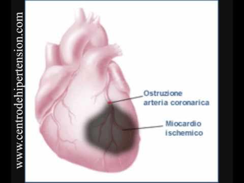 partes del corazon. 4 partes del corazon- parte 3