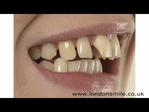 Cosmetic Dental Surgery - London Smile Dental Practice W1