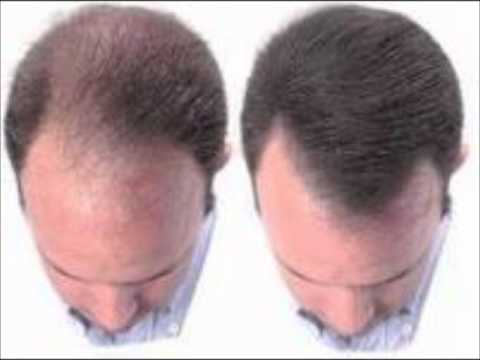 Propecia minoxidil regrowth