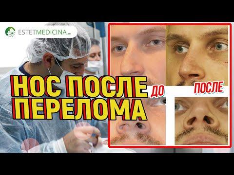 0 - Ознаки зламаного носа — як визначити