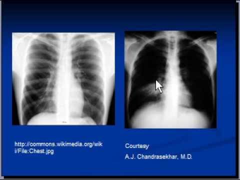 Chest x-ray interpretation -- Lung consolidation and main causes