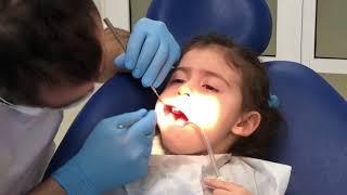 Elif ve Babası - Diş Doktoru Muayenesi
