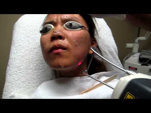 Acne and Acne Scar Treatment -Los Angeles-Anaheim-Pasadena-Whittier-Riverside-Corona