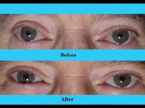 #1 Secret for White. Whiter Eyes. Part 2. Fixing BloodShot. Yellow Eye Whitening Video