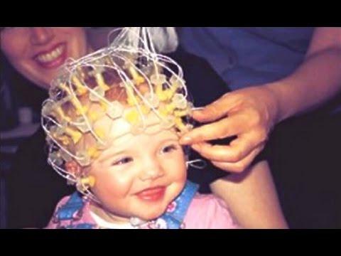 Как сделать энцефалограмму ребенку