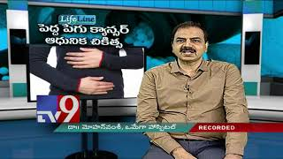 Large Intestine Cancer - Modern treatment - Lifeline