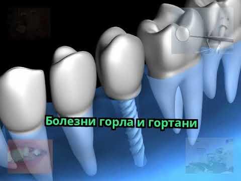0 - Від захворювань горла