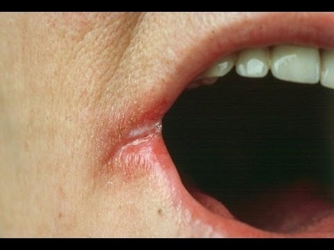 rash on lips