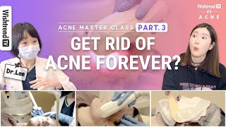 All About Acne Care: From Acne Laser Treatment to Medication | 4-Week Acne Master Course | Part 3