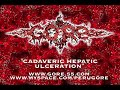view Cadaveric Hepatic Ulceration