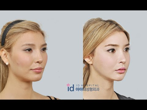 [Orthognathic surgery review] Jenna Talackova's interview before surgery(Underbite Jaw Surgery)