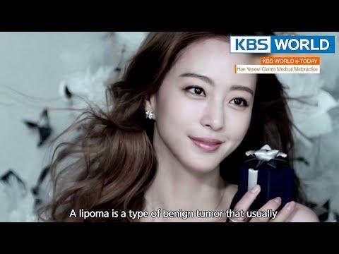 KBS WORLD e-TODAY [ENG/2018.04.23]
