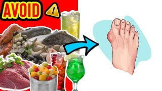 Uric Acid and Foods That Cause Gout