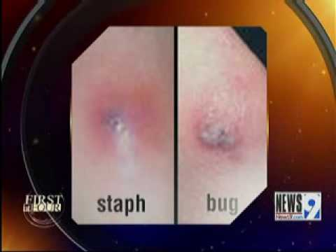 Infected Spider Bites Bug Bites vs Staph Infections