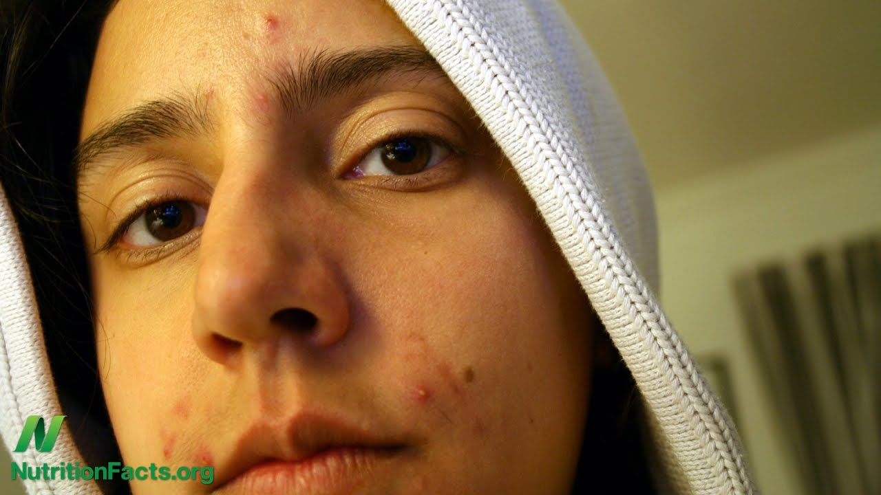 Acne & Cancer Connection