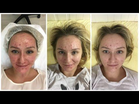 Акне-Влог. Чистка кожи Hydra Facial: до, во время и после