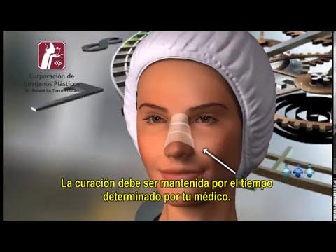 Rinoplastia | Corporación de Cirujanos Plásticos | Lima - Perú