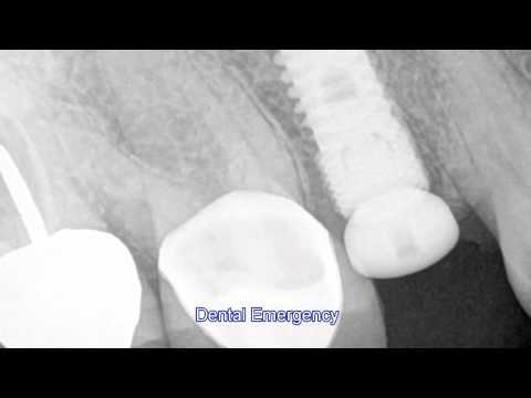 Dental Emergency 5-26 -s