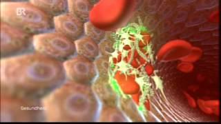 79 Medizin Video Makroma der Blutverdünner - es gibt 2 neue Alternativen.