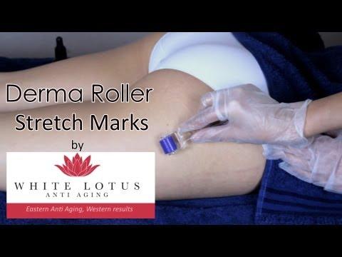 Derma Roller Stretch Marks